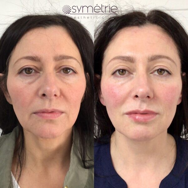 This 51 year old woman has had Botox, profhilo and dermal fillers to cheeks, midface, marrionette lines, jawline, chin and lips
