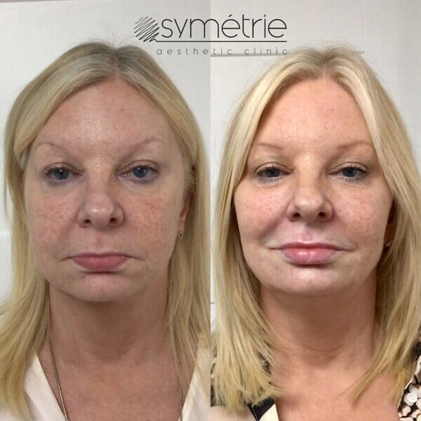 This 58 Year Old Woman Was Given Dermal Fillers To Her Cheeks, Midface, Nasolabial Folds (nose To Mouth Lines), Marrionette Lines Chin And Lips. She Also Had Botox 1