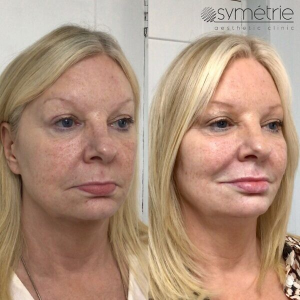 This 58 Year Old Woman Was Given Dermal Fillers To Her Cheeks, Midface, Nasolabial Folds (nose To Mouth Lines), Marrionette Lines Chin And Lips. She Also Had Botox
