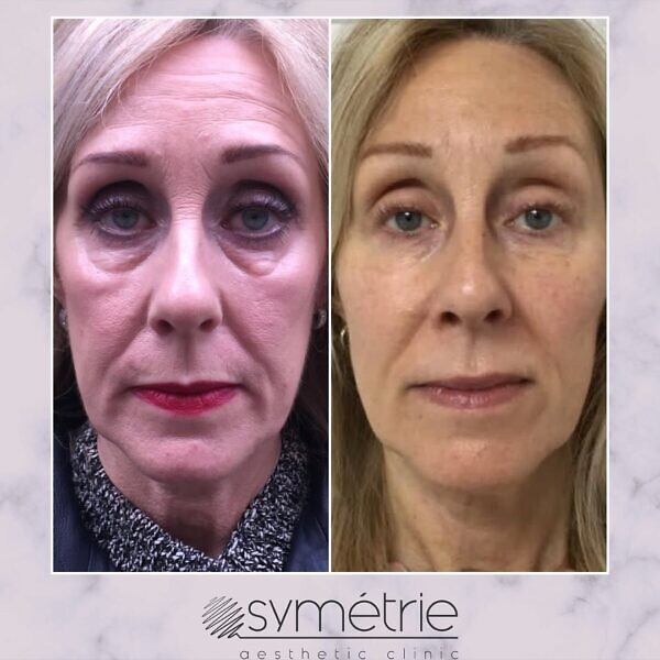 This 61 Year Old Woman A Course Of 3 Profhilo. Dermal Fillers To Temples, Cheeks, Midface, Nasolabial Lines, Marrionette Lines, Chin And Prejowl Sulcus