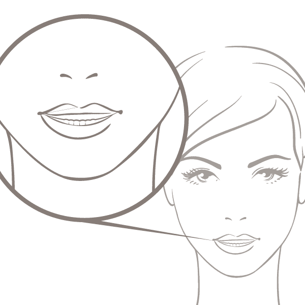 Symetrie Gummy Smile