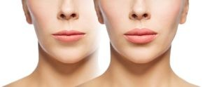 Lip Enhancement Enhanced Lips