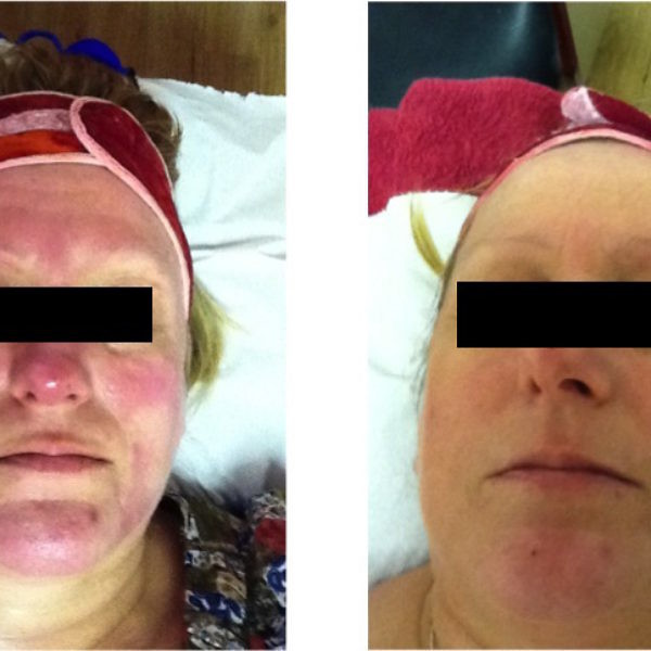 Rosacea - Results after 5 treatments