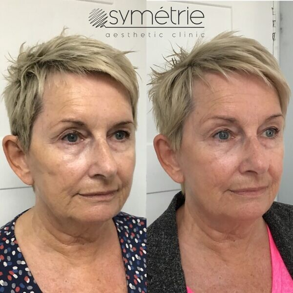 This 65 year old woman has had Profhilo and dermal fillers to cheeks, mid face, marionette lines and jawline