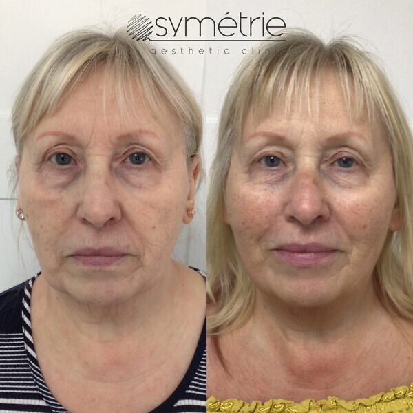 This 67 Year Old Woman Was Given Dermal Fillers In Cheeks, Midface, Jawline And Lips. Also, A Course Of 3 Profhilo