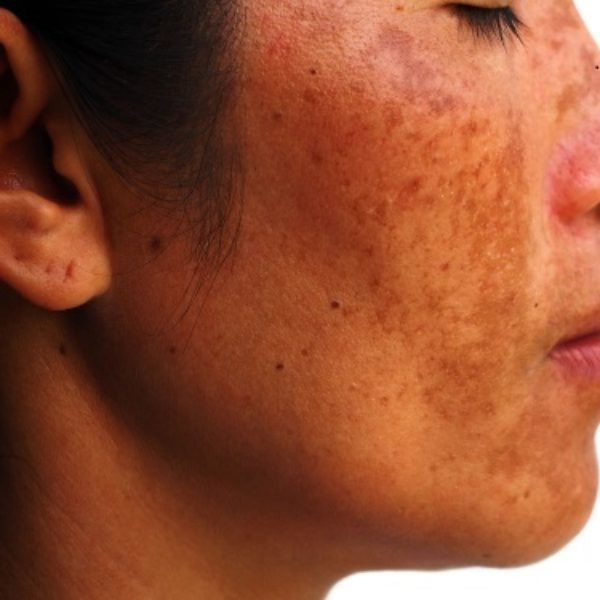 Melasma the facts - Symétrie Aesthetic Clinic Oldswinford Stourbridge West Midlands