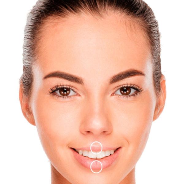 Lip Enhancement Dermal Fillers Symetrie Stourbridge