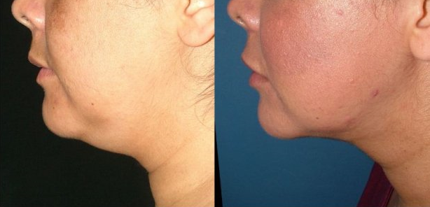 Before And After 1 Session 40 Days