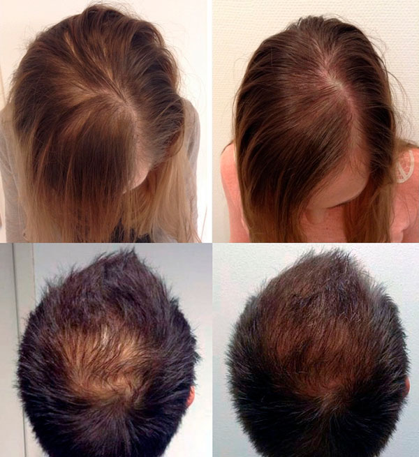 Hair Loss - XL Hair a revolutionary new treatment against Hair loss